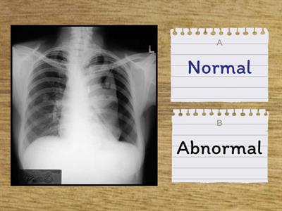 Red Dot or Not? Radiology x-ray quiz