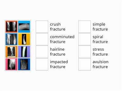 fractures for English in Medicine